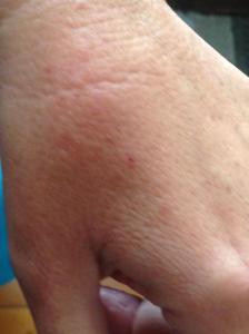 bite on hand